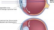 Akkommodation des Auges