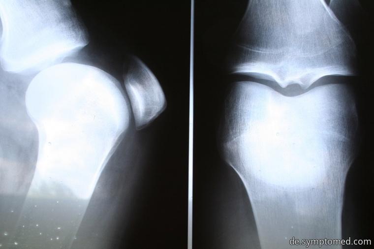 Arthrose-Röntgenbilder