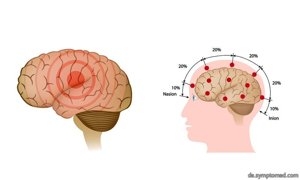 Epileptischer Anfall