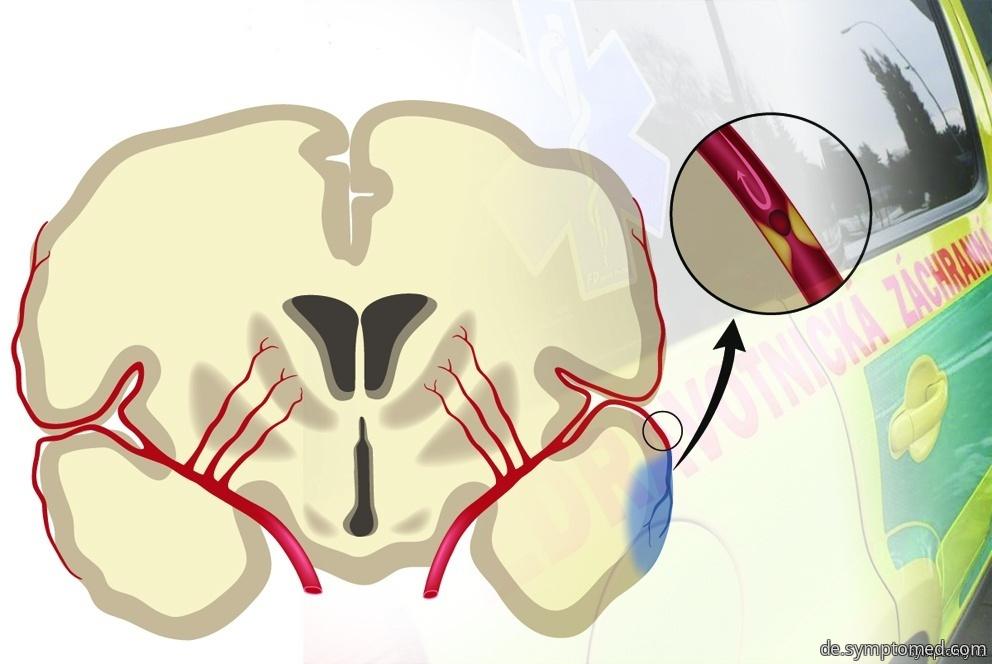 Gehirnschlag