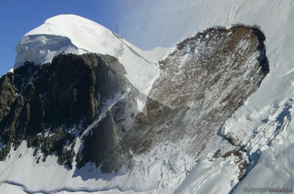 Was alles kann in den Bergen passieren