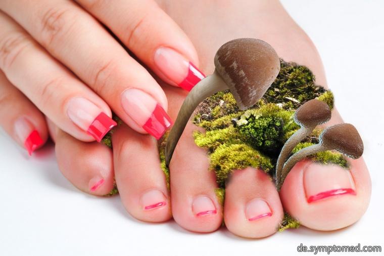 Pilze an den Füßen