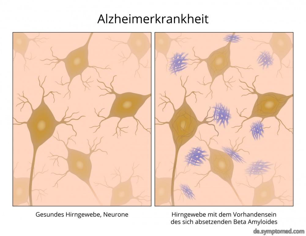 Alzheimer - Krankheit