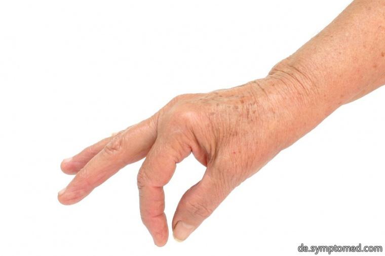 Arthritisdetail