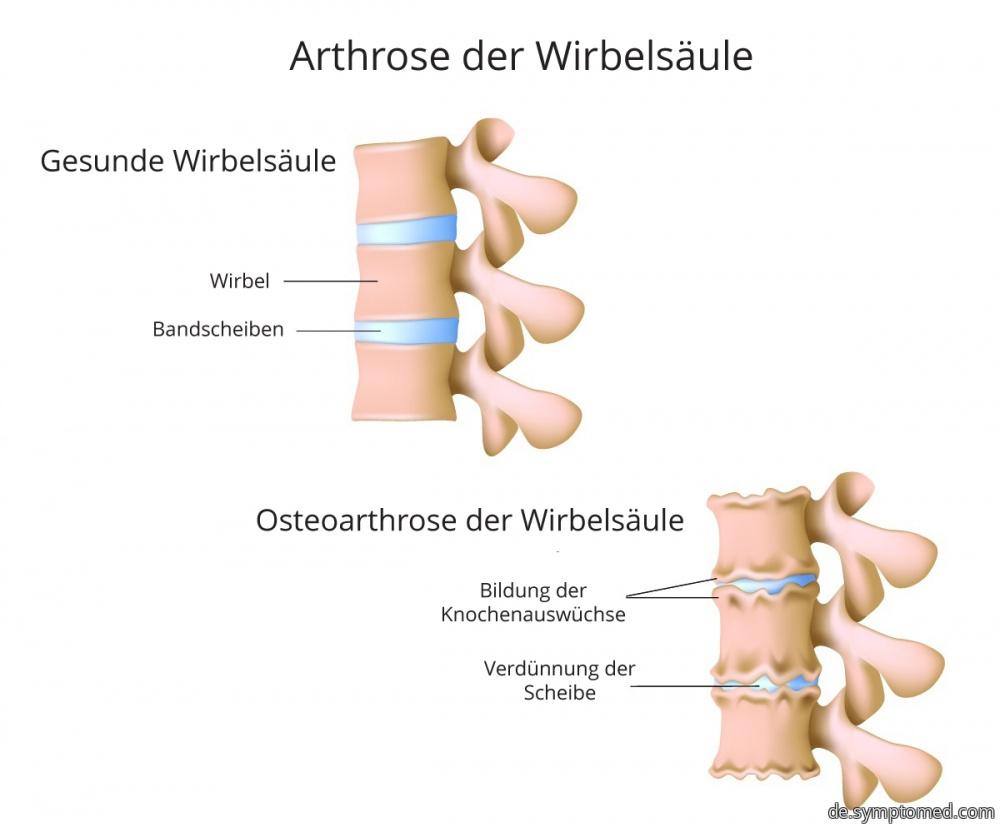 Arthrose der Wirbelsäule - Symptome