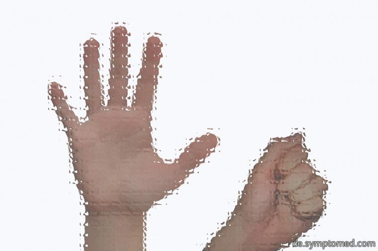 Asperger - Syndrom, betroffene Hände
