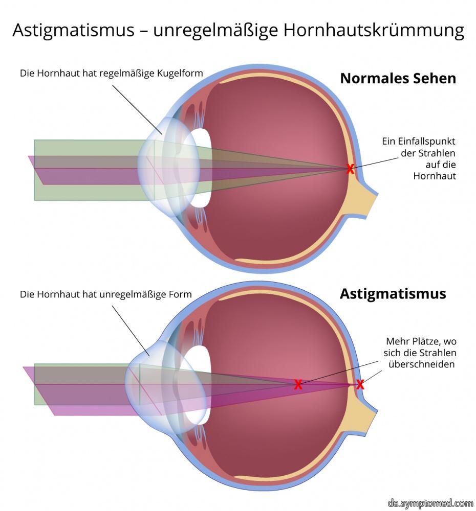 Astigmatismus - unregelmäßige Hornhautskrümmung