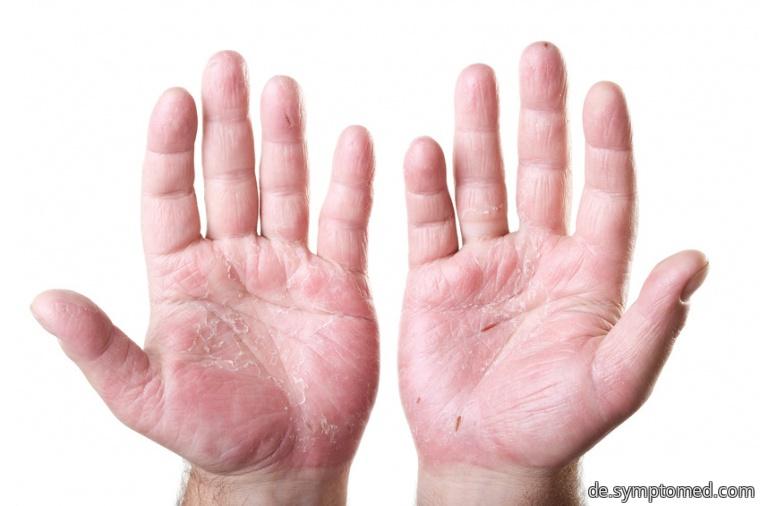Atopisches Ekzem - Mit ihm betroffene Hände
