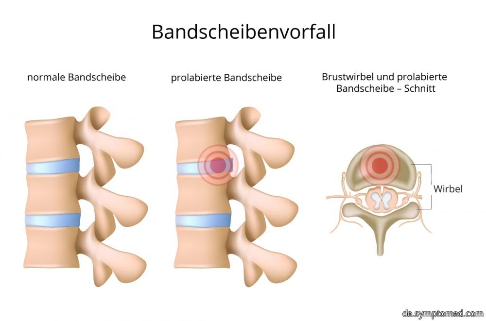 symptome bandscheibe