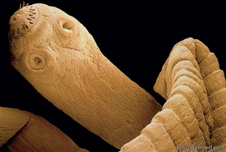 Rinderbandwurm (Taenia saginata)