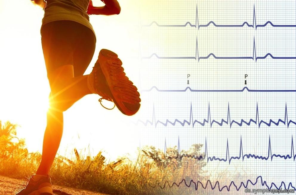 Bradykardie - Verlangsamung der Herztätigkeit