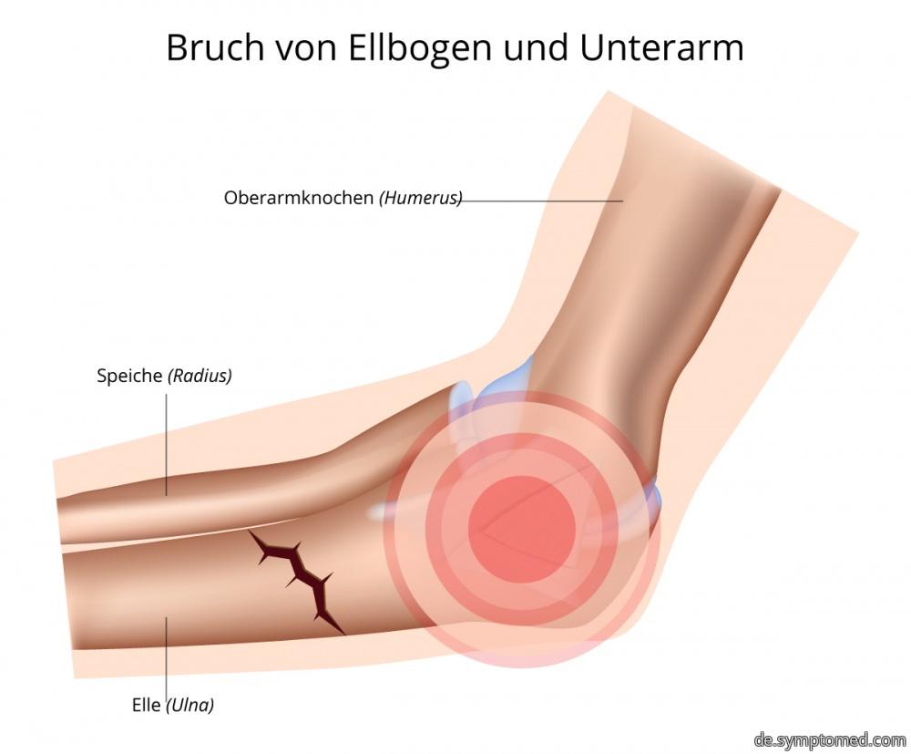 Bruch von Ellbogen und Unterarm