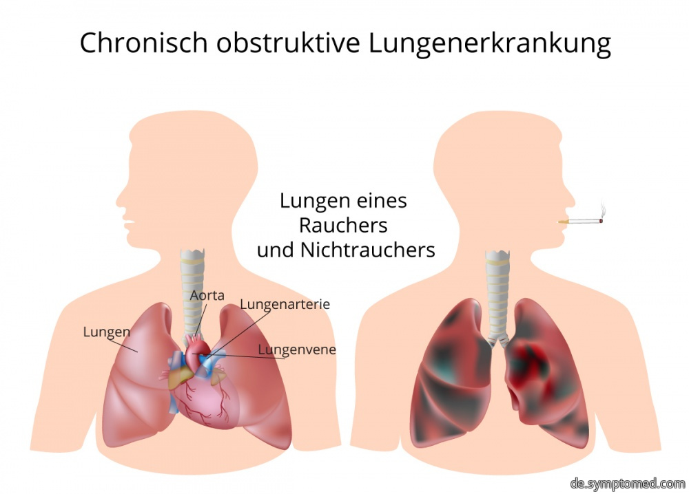 Chronische obstruktive bronchopulmonale Erkrankung - COPD