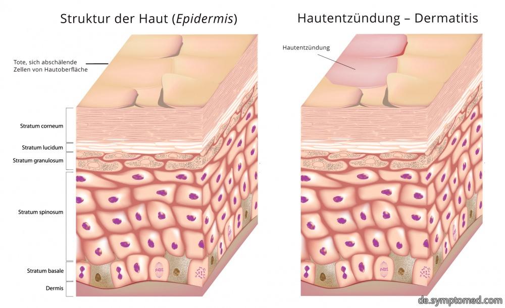 Dermatitis - schematische Darstellung