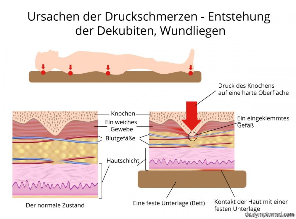 Entstehung der Wundliegen