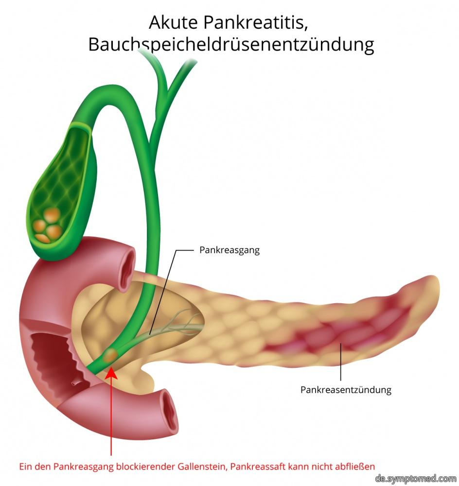 Akute Pankreatitis - Entzündung der Bauchspeicheldrüse