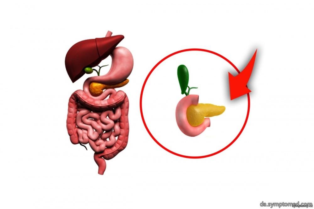 Entzündung der Bauchspeicheldrüse - Symptome