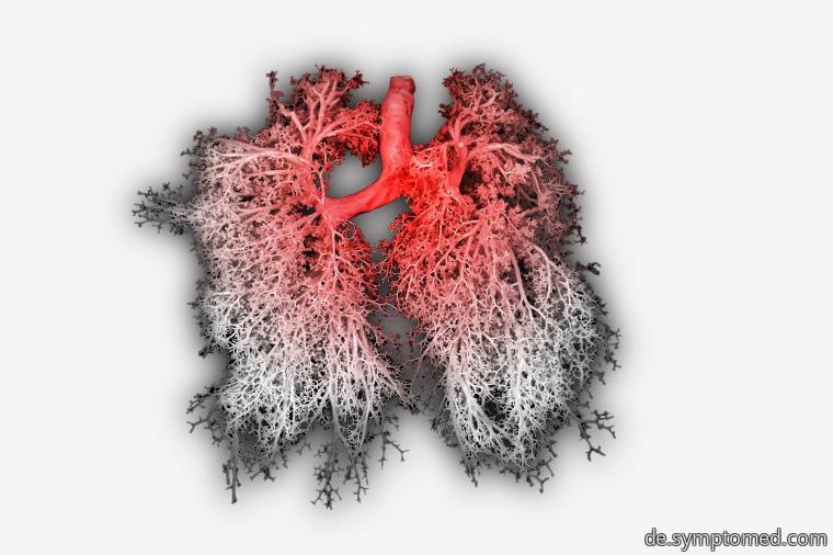 Entzündung der Bronchien