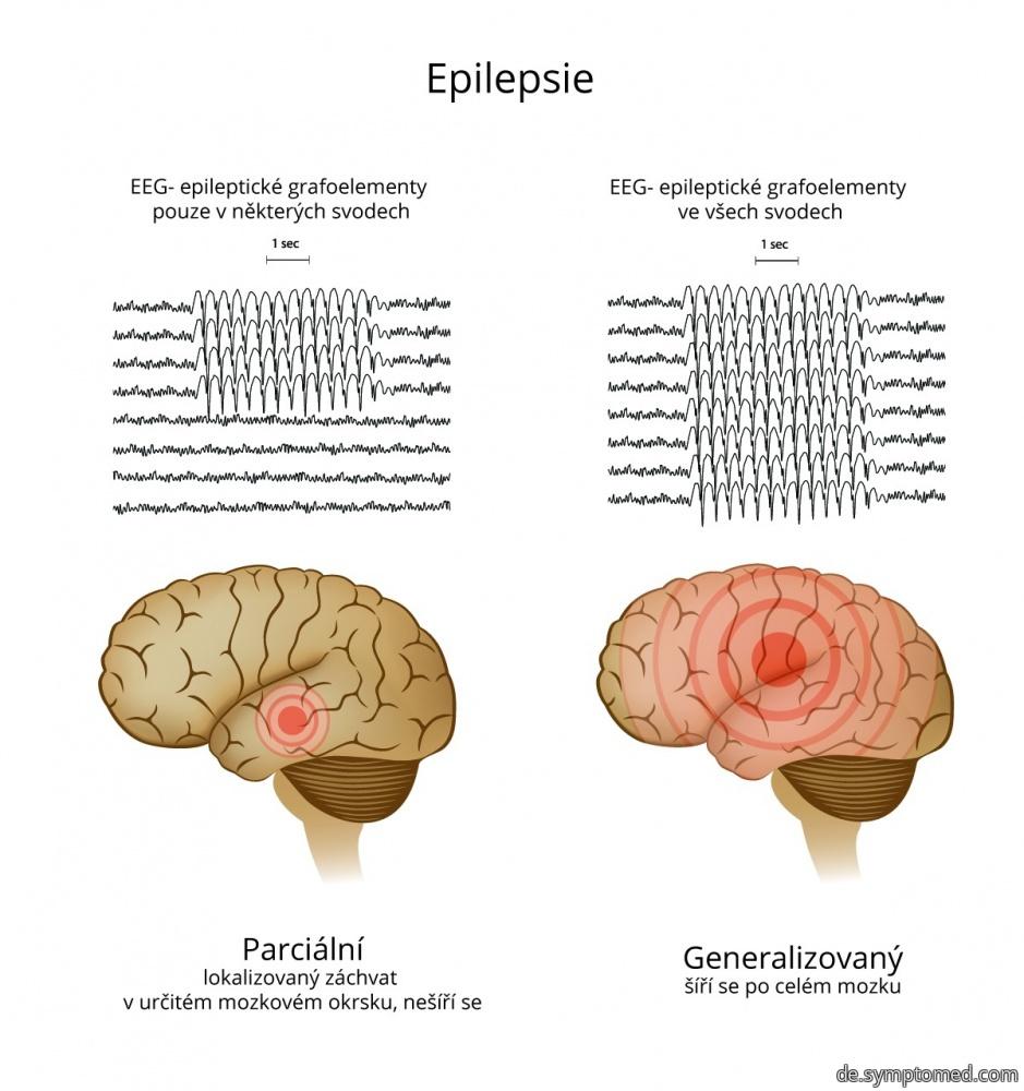 Epilepsie - partieller und generalisierter Anfall