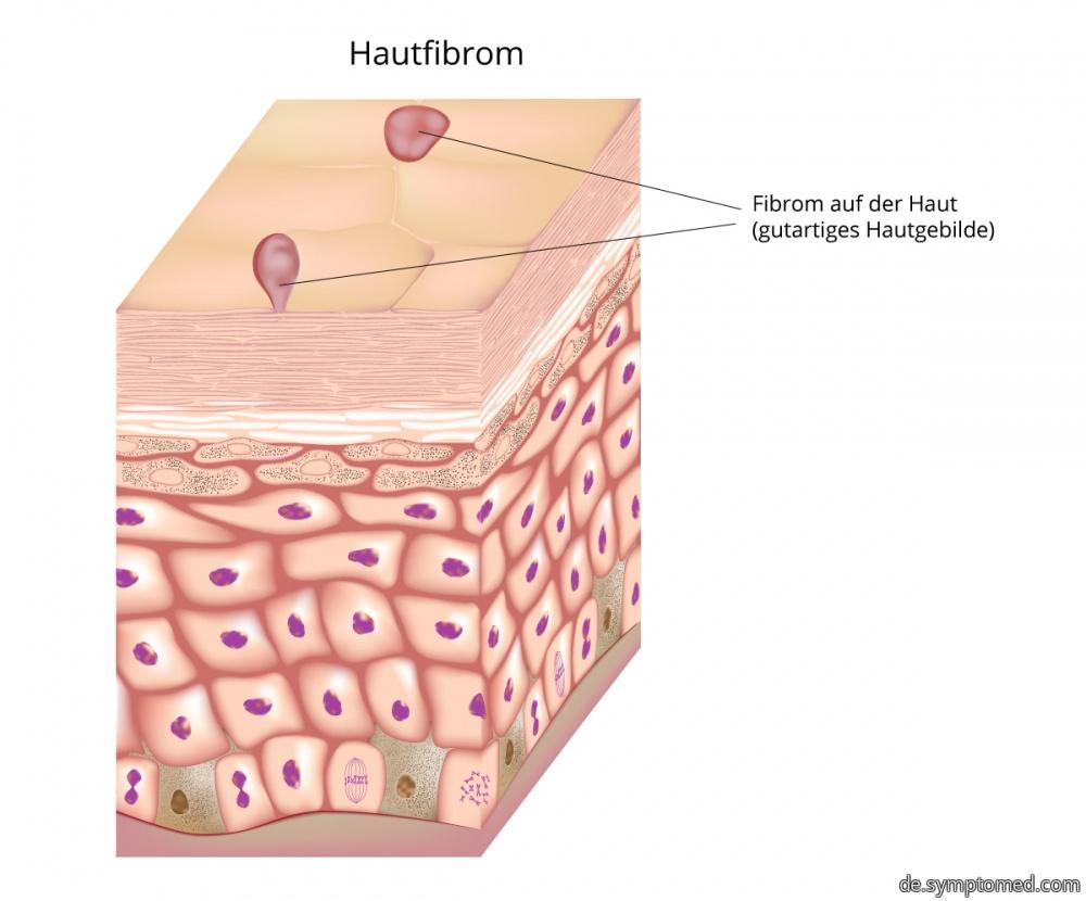 Gutartiges Fibrom auf der Haut