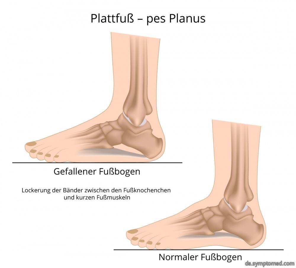 Flacher Fuß - pes Planus