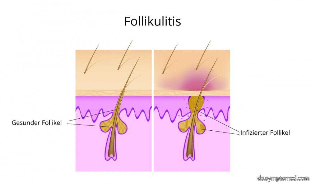 Schematische Darstellung der Follikulitis