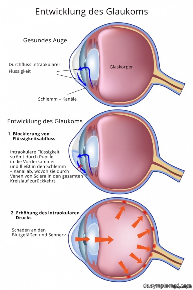 Entwicklung des Glaukoms