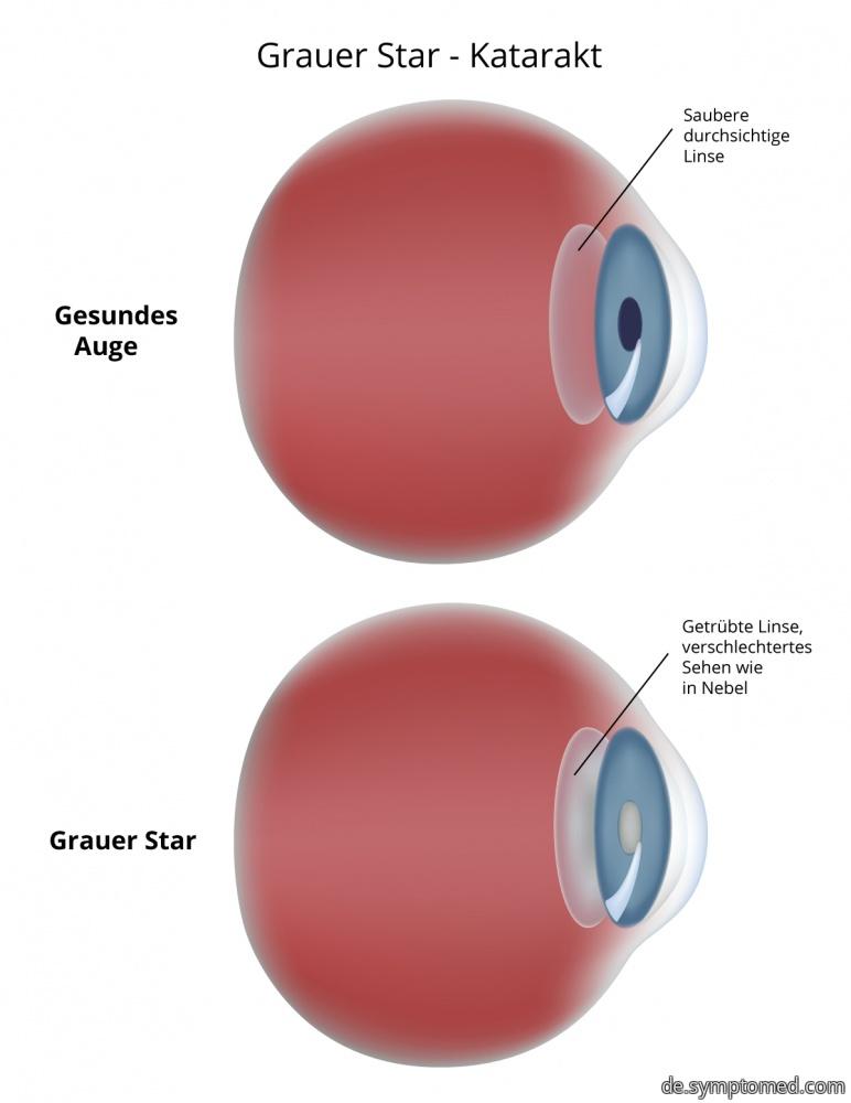 Grauer Star, Katarakt