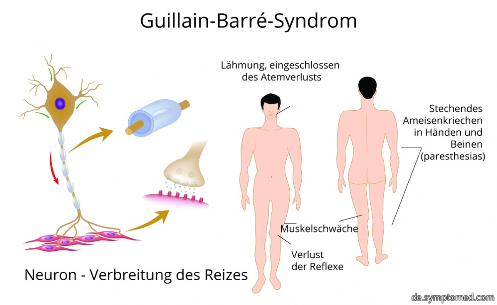 Manifestationen von Guillain-Barré-Syndrom