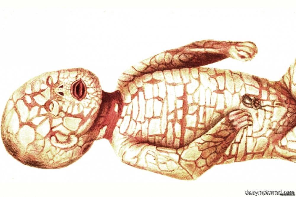 Harlekin Ichthyose Bilder
