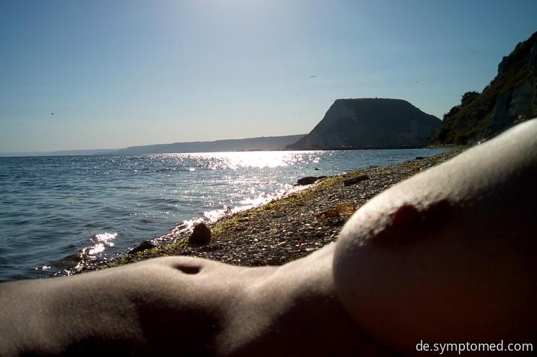 Vor der Sonnenstrahlung ungeschützte Körperhaut