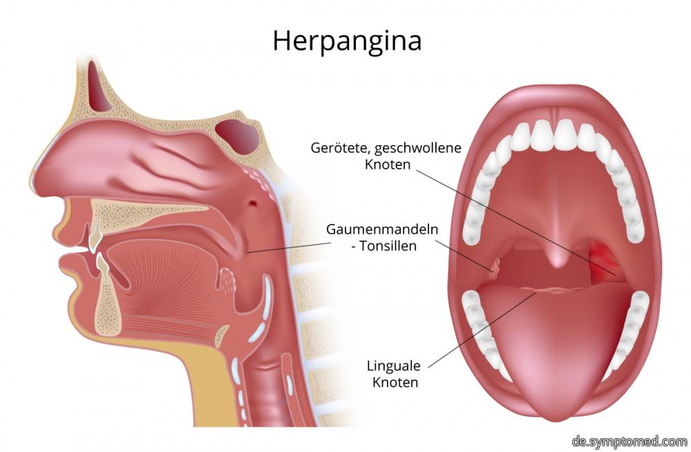 Herpangina - geschwollene Lymphknoten