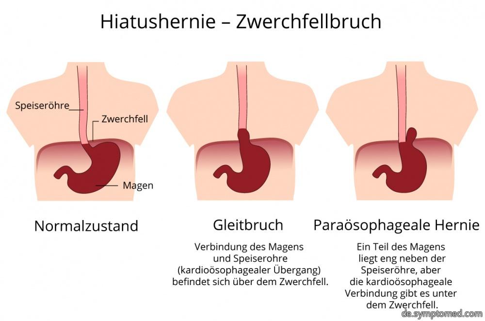 Darstellung des Zwerchfellbruchs