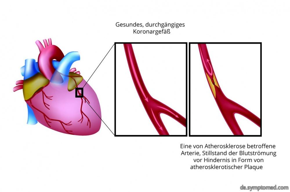 Unterschied zwischen dem gesunden und betroffenen Koronargefäß