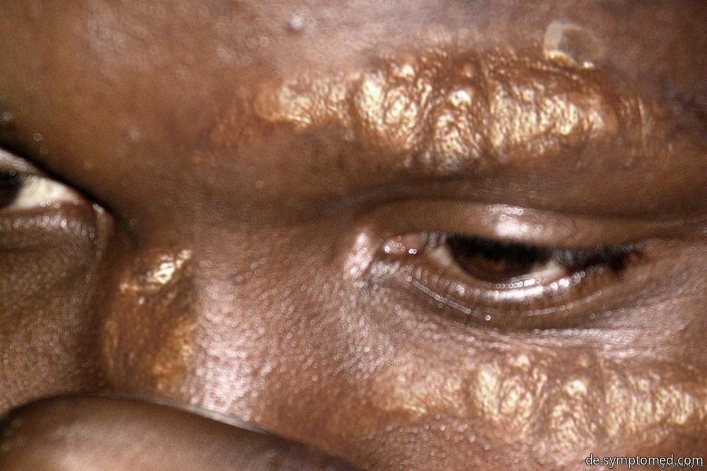 Manifestationen der Lepra auf der Haut