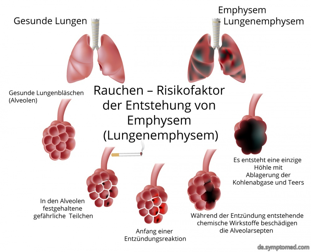 Das Rauchen - Risikofaktor des Lungenemphysems