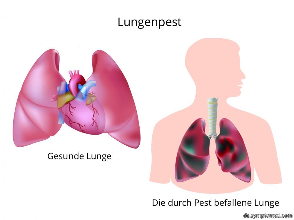 Lungenpest