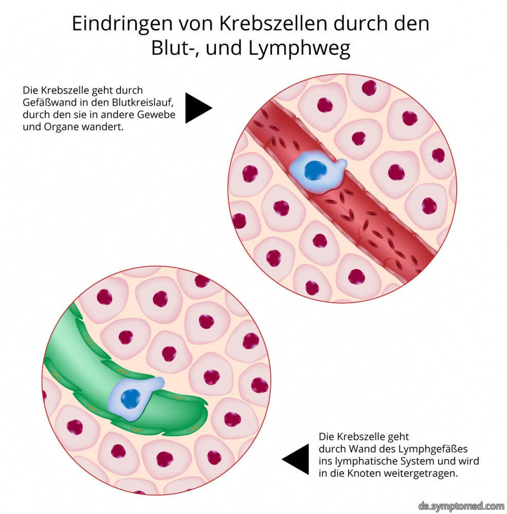 Durchdringung der Krebszellen durch Blut-, und lymphatischen Weg