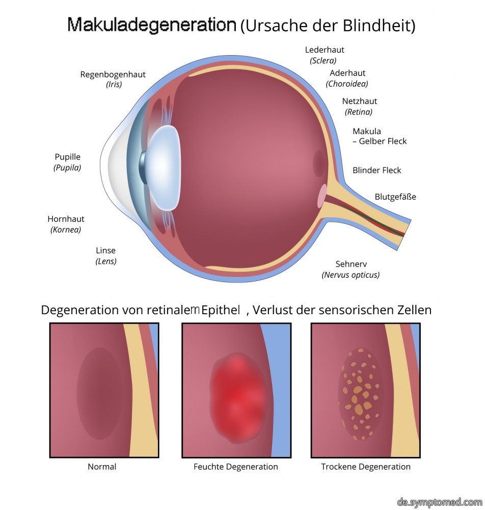 Makuladegeneration - Ursache der Blindheit