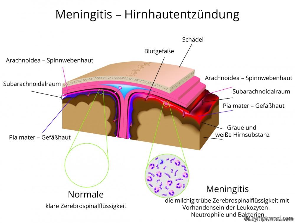 Meningokokkenmeningitis - schematische Darstellung