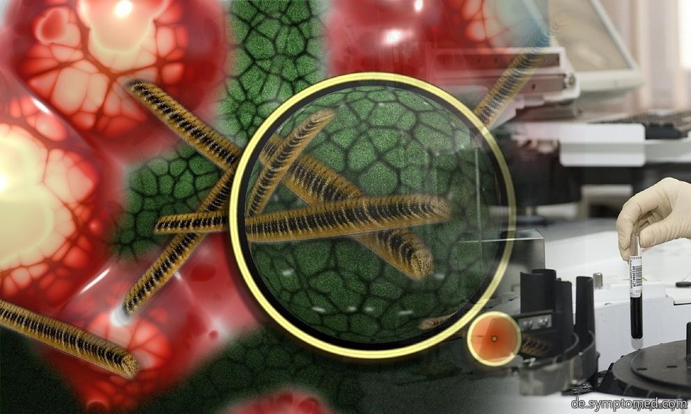 Mykoplasmen - atypische Bakterien