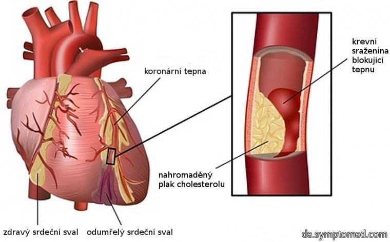 Mit Infarkt betroffenes Herz