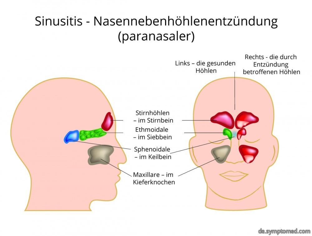Sinusitis - Nasennebenhöhlenentzündung