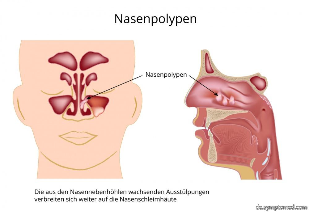 Nasenpolypen - Symptome