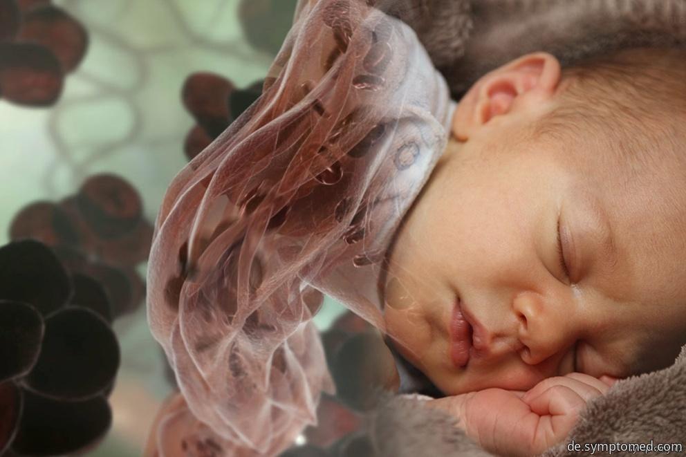 neugeborenengelbsucht symptome. Black Bedroom Furniture Sets. Home Design Ideas