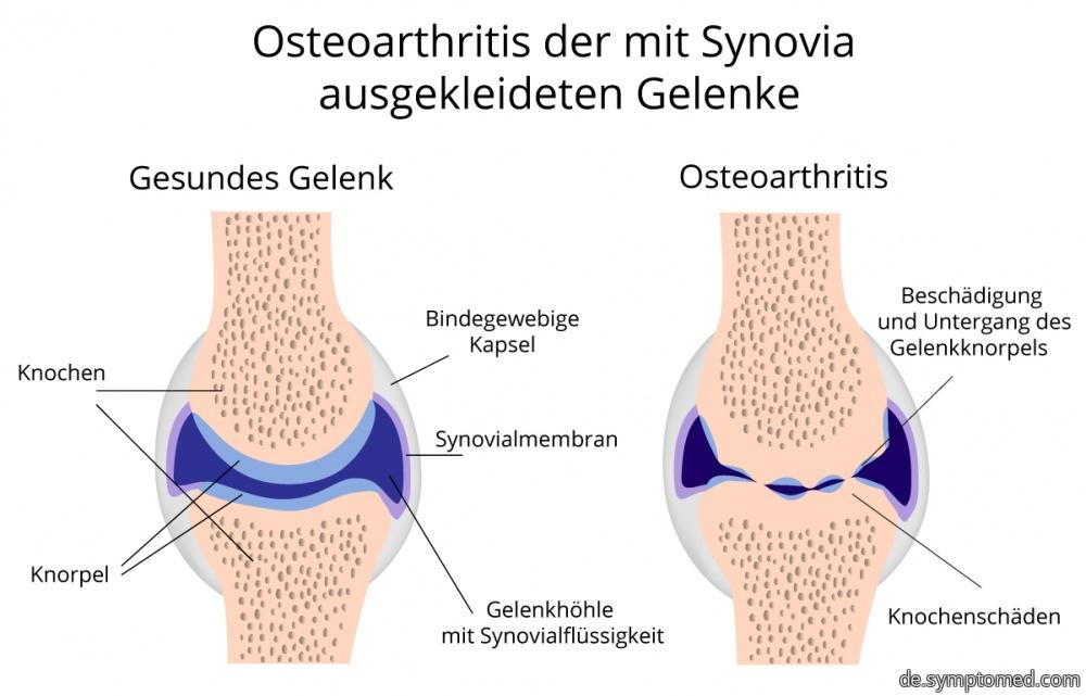 Gesundes Gelenk und Gelenk mit Osteoarthritis