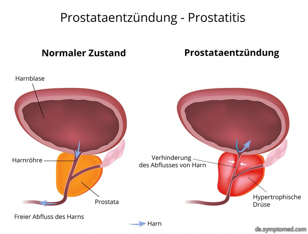 prostataentzündung symptome ursachen