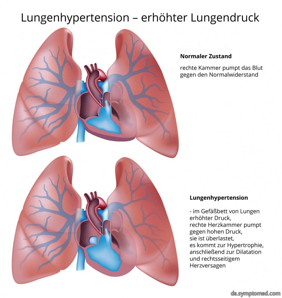 Lungenhypertension - erhöhter Lungendruck