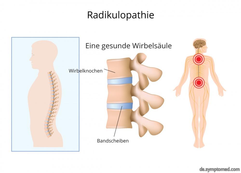 Radikulopathie