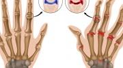 Rheumatoide Arthritis der Fingergelenke